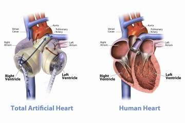 Image: Total Artificial Heart